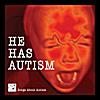 Eric Behrenfeld: He Has Autism