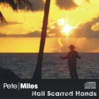 Pete Miles | Nail Scarred Hands